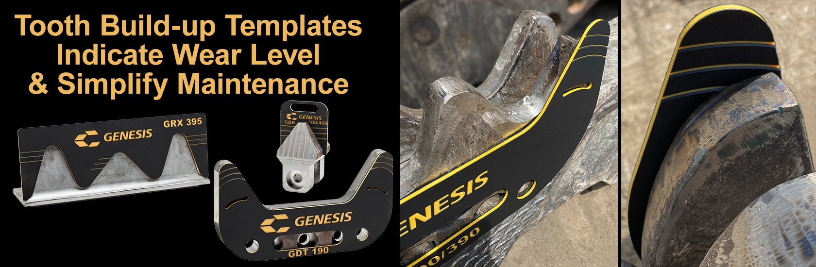 Genesis Tooth Build-up Template Image